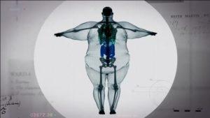 400 lbs man  x-ray